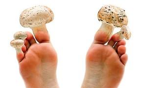 Как можно избавиться от грибка ногтей на ногах в домашних условиях быстро и легко