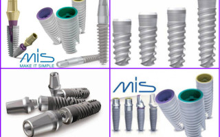 Дентальные импланты MIS: модельный ряд, цены, отзывы