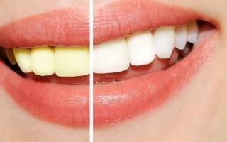 Как выбрать самый лучший гель, чтобы отбелить зубы