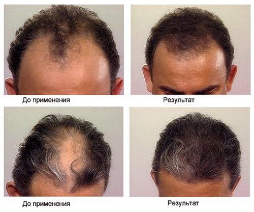 маска масляная для волос отзывы