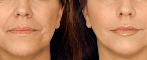 нижняя часть лица до и после процедуры