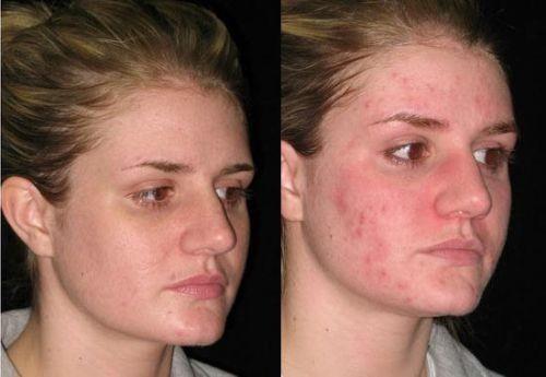 фото лица до и после чистки