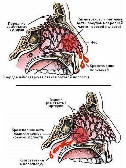 передний и задний тип кровотечения