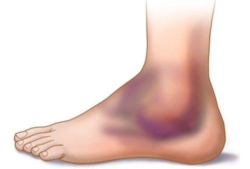 отекает сустав голеностопа после травмы