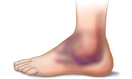 гематома после ушиба ноги
