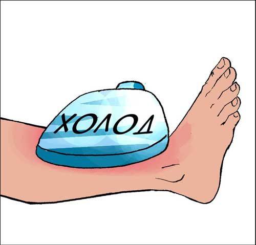 прикладывание компресса при ушибе ноги