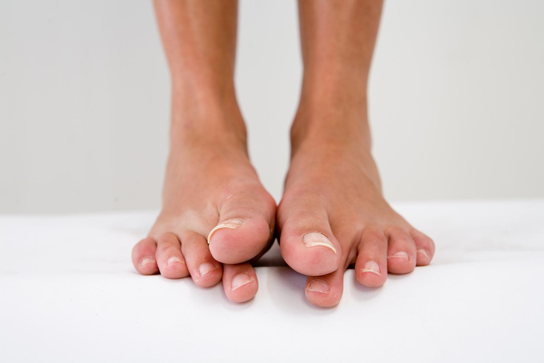 Сводит пальцы ног