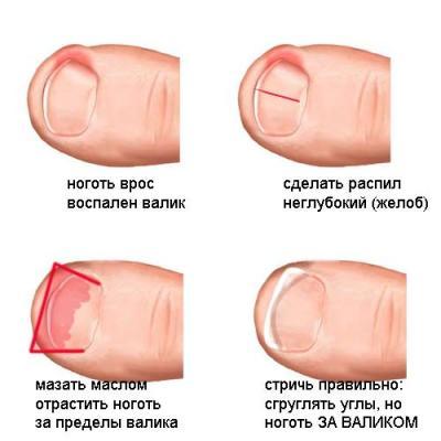 На примере пальцев ног показано нарушение роста пластины