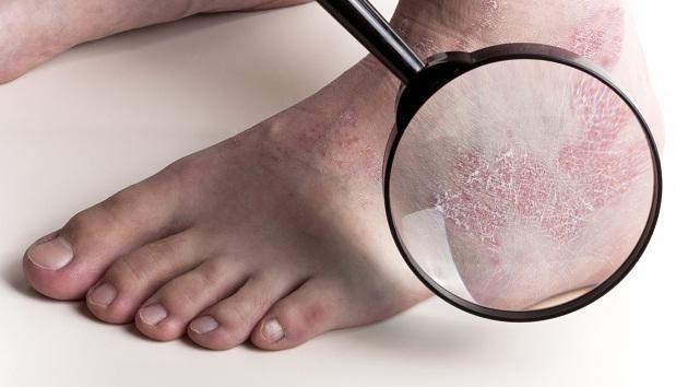 шелушится кожа ног