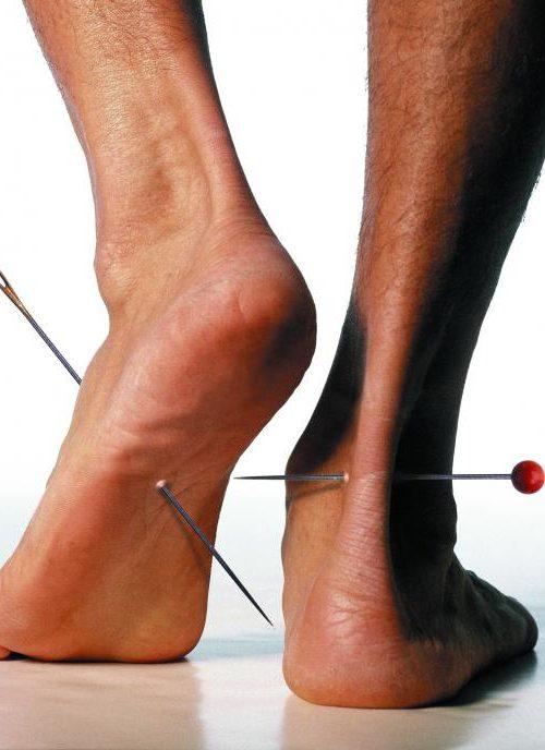 онемение в ногах