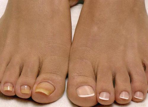 здоровые и желтые ногти на ногах