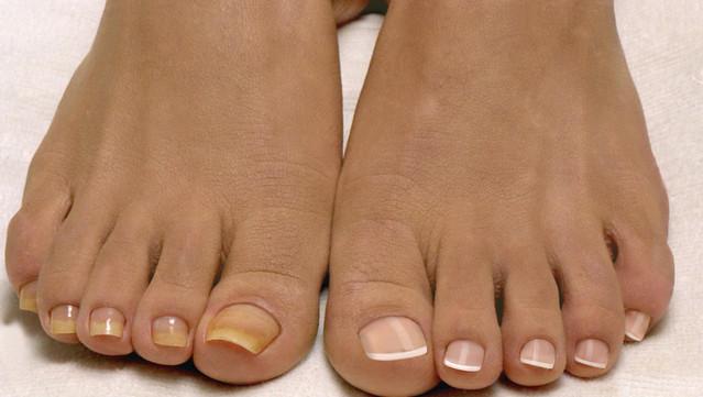 Гноятся ногти на ногах лечение