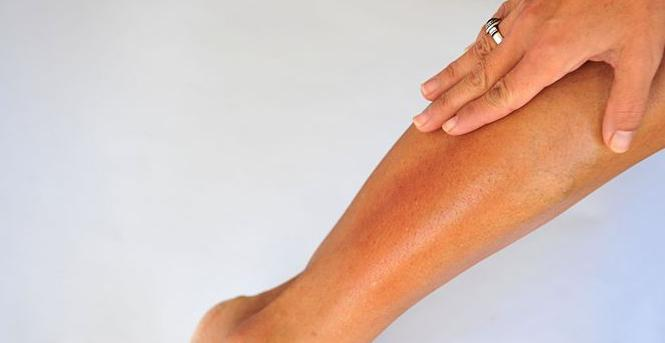очень сухая кожа по всему телу