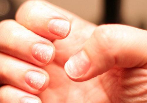 Проблемы с ногтевыми пластинами