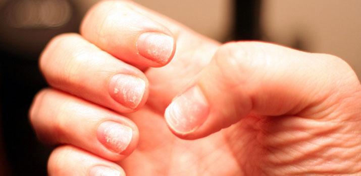 Kết quả hình ảnh cho Причина ухудшения состояния ногтей