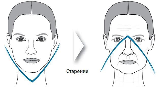 возрастные изменения кожи лица