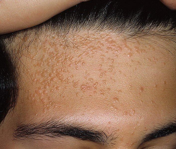 Папилломы прямой кишки основные симптомы  ЦМ.