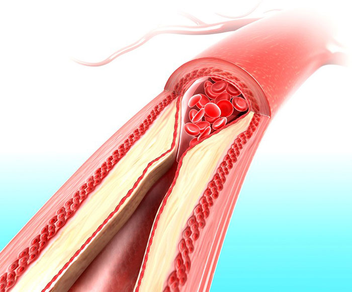 бляшка в кровеносном сосуде