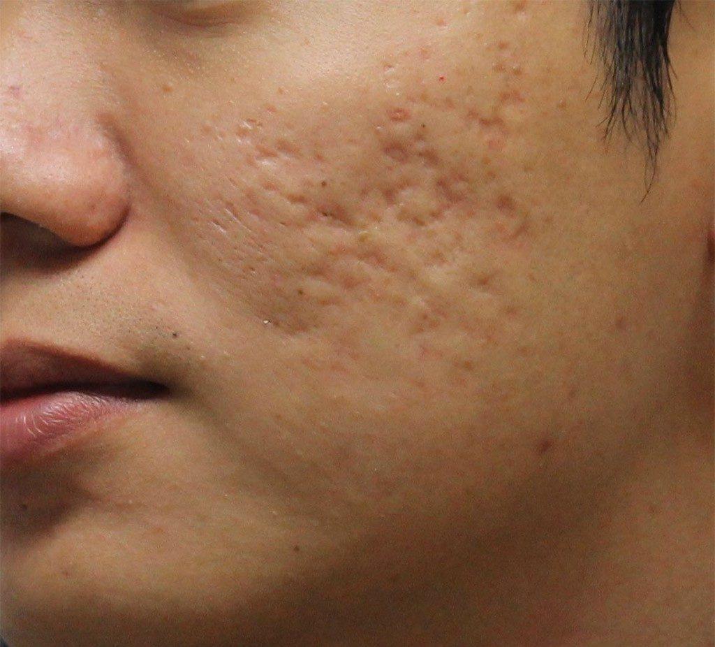 бугристая кожа после прыщей