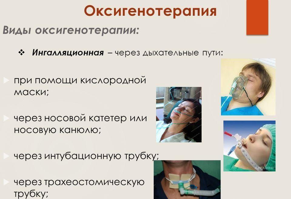 способы подачи воздуха при оксигенотерапии