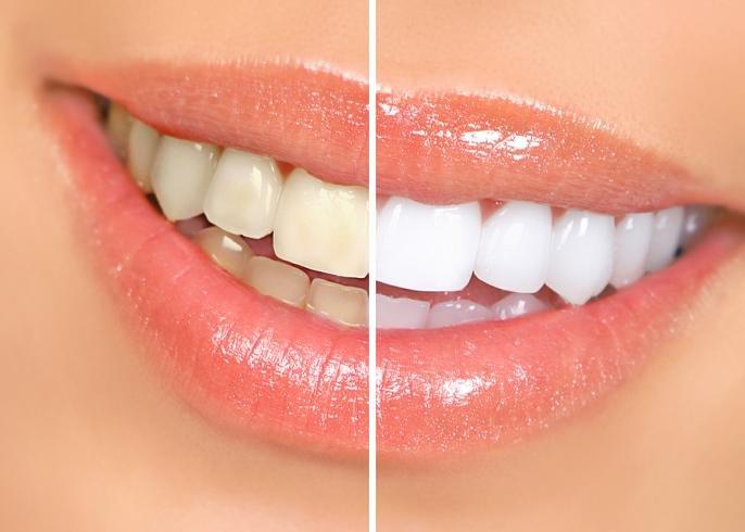 пожелтевшие и отбеленные зубы