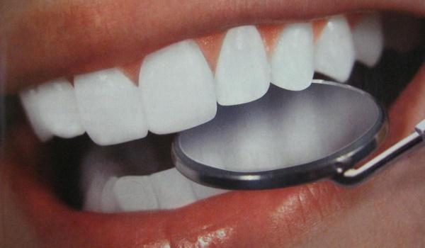 белые здоровые зубы