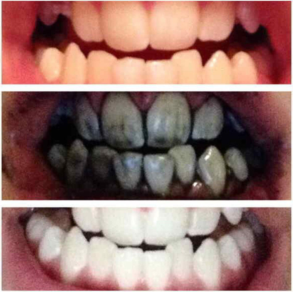 уголь на зубах