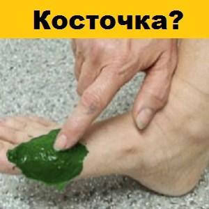 Болезненная косточка на ноге растворится за сутки, если приложить теплый...