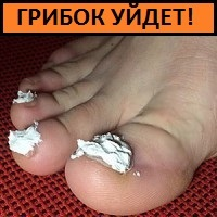 ГРИБОК ногтя проходит за 3 дня! Просто втирайте в ноготь...