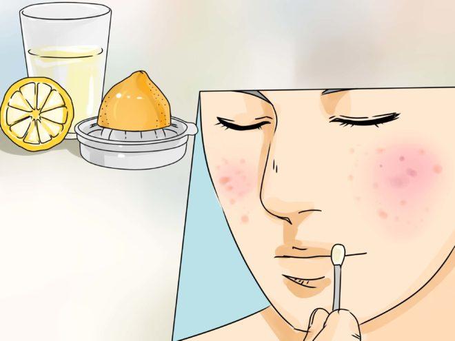 лимонный сок от покраснений